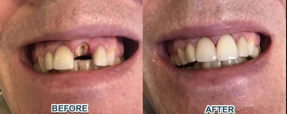 Cosmetic-dentisty-before-after-1