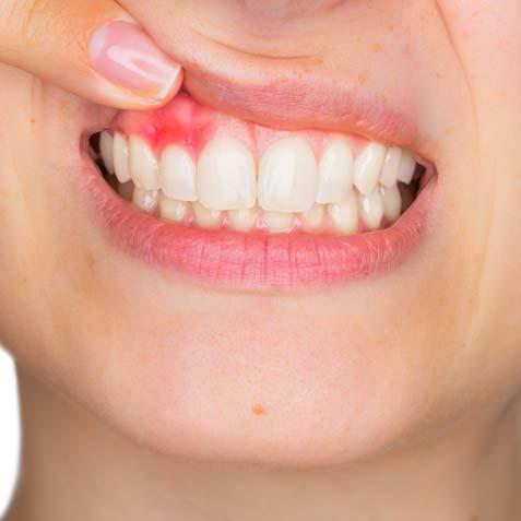 Gum-Disease-Treatment-Cta