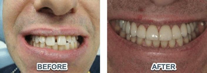 teeth-reconstruction