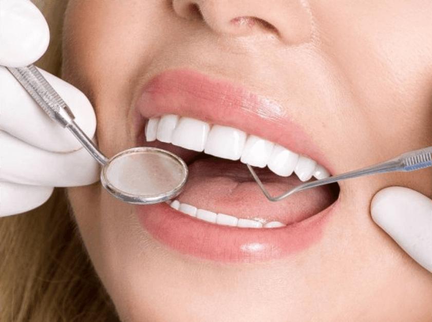 Advanced Dental Wellness of Ft Lauderdale -dental porcelain veneers