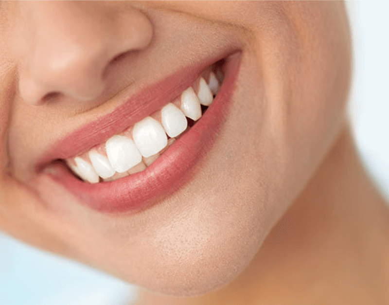 Advanced Dental Wellness of Ft lauderdale -cosmetic dentistry pic